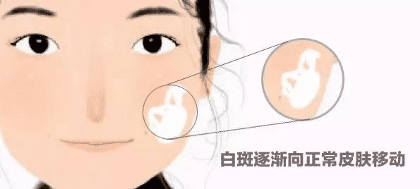 <a href=/ target=_blank class=infotextkey>成都博润白癜风医院</a>