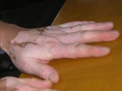 男性白癜风有哪些症状?